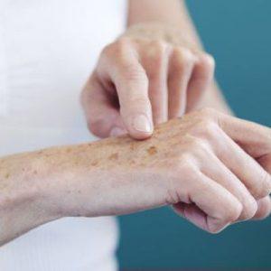 Mancha nas mãos (Melanose solar)
