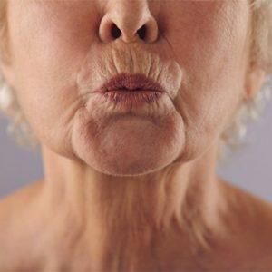 Preenchimento linhas da boca (código de barras)